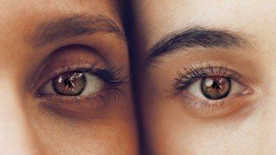 Ein Auge ist blau, ein Auge ist braun | sanavals